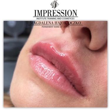 Powiększanie ust kwasem hialuronowym ( Russian Lips, Hollywood Lips, Jolie Lips, Garunova)